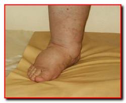 Лимфостаз лечение