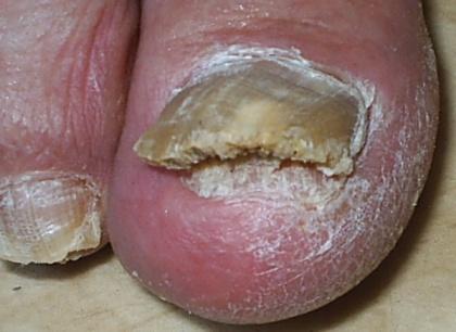 Народные методы лечения грибка ногтей
