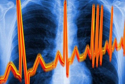 Как лечить аритмию сердца народными