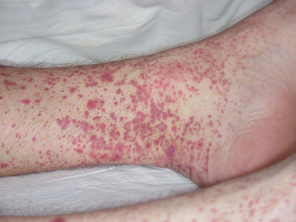 Опасность геморрагического васкулита