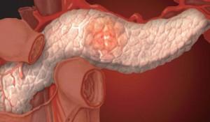 Хронический панкреатит – лечение
