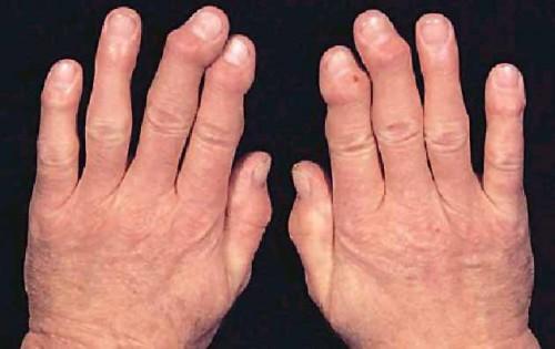 Артрит суставов. Как лечить артрит народными средствами и методами