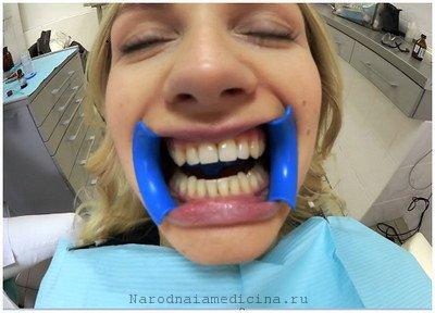 Народные средства отбеливания зубов