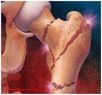 Перелом кости при болезни Педжета