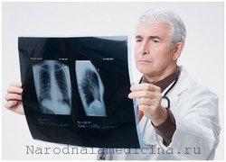 Пневмония у взрослых