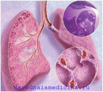 Саркоидоз легких. Лечение народными средствами