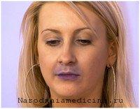 Синюшность губ при остром бронхите