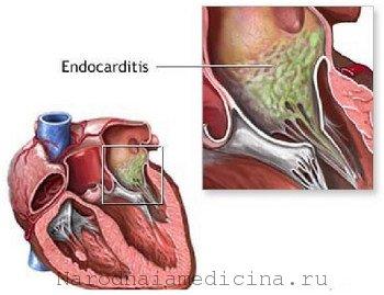 Эндокардит симптомы, лечение, профилактика, признаки, причины ...