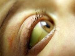 Заболевания печени и желчевыводящих путей,первые признаки заболевания печени,лечение заболеваний печени народными средствами