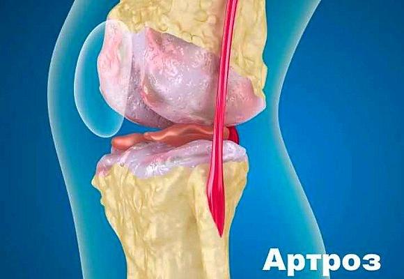 Лечение деформирующего артроза коленных суставов