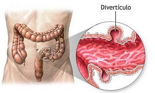 Дивертикулез кишечника