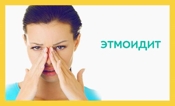 Этмоидит симптомы и лечение у взрослых