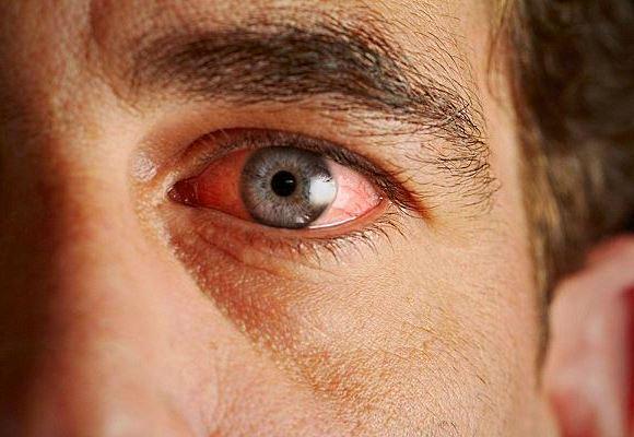 Как лечить глазные болезни шалфеем