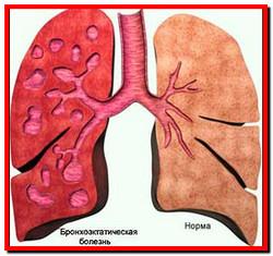 Лечение бронхоэктатической болезни