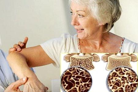 Симптомы остеопороза костей