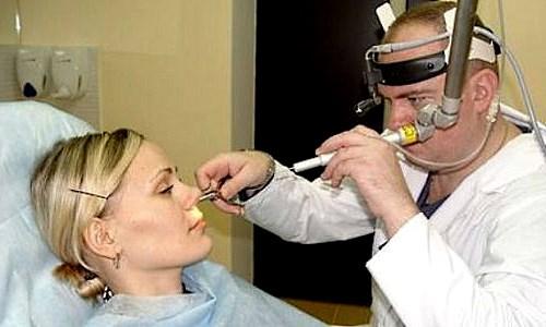 Vazomotornyj-rinit-simptomy