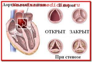 Аортальный стеноз. Лечение народными средствами и консервативное