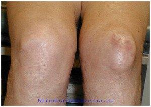 Бурсит локтевого и коленного суставов, лечение народными средствами