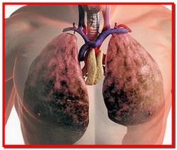 Эмфизема легких. Симптомы, лечение народными средствами