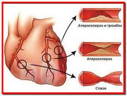 Ишемическая болезнь сердца. Лечение народными средствами