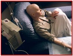 Лимфолейкоз хронический. Лечение хронического лимфолейкоза народными средствами
