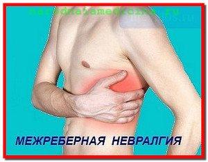 Невралгия. Лечение невралгии народными средствами