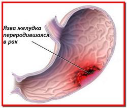 Рак желудка. Лечение рака желудка народными средствами