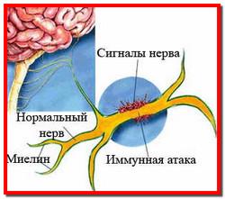 Рассеянный склероз. Лечение рассеянного склероза народными средствами