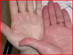 Железодефицитная анемия лечение народными средствами