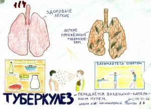 народная медицина туберкулез