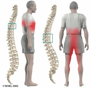 Лечение грудного остеохондроза