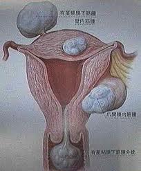 Миома матки: народные методы лечения
