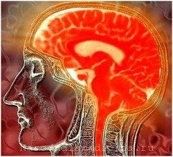 Менингит лечение и симптомы