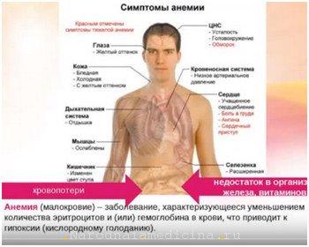 Анемия - симптомы низкого гемоглобина