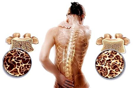 Чем лечить остеопороз в домашних условиях
