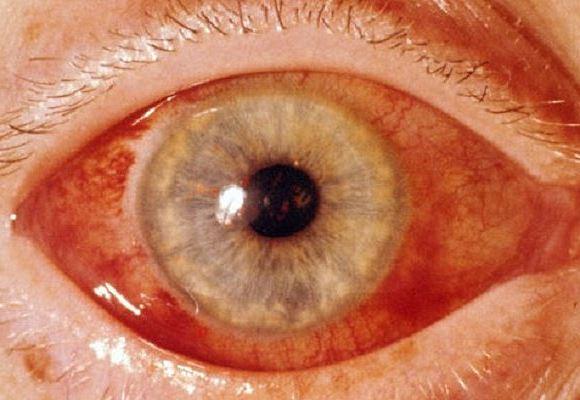Глаукома - симптомы и лечение, фото