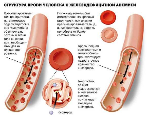 Клинические формы и симптомы анемии