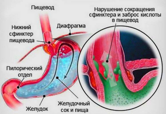 Механизм развития пищевода Баретта