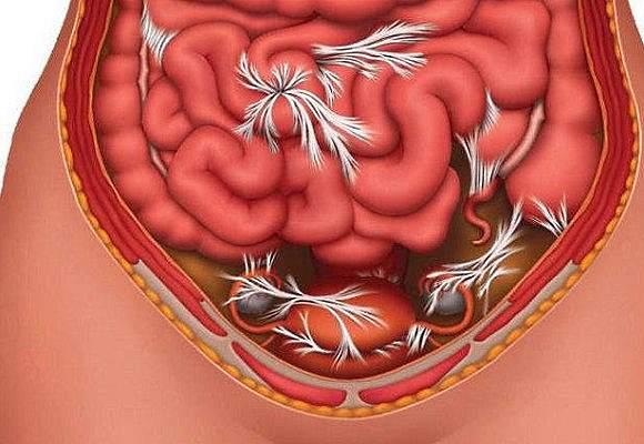 Симптомы спаечной болезни малого таза