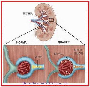 Диабетическая нефропатия. Причины, симптомы и лечение