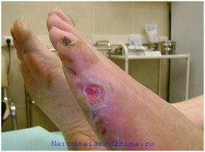 Лечение гангрены нижних конечностей без ампутации