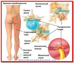 Невралгия бедренного нерва. Симптомы, лечение народными средствами