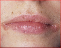 Заеды в уголках рта. Лечение народными средствами
